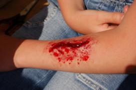 Jaarlijks 12.000 gewonden in de horeca